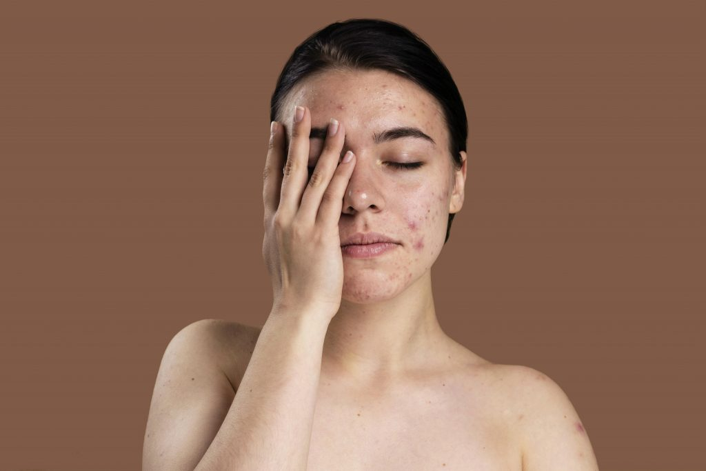 This image has an empty alt attribute; its file name is portrait-young-woman-being-confident-with-her-acne-1024x683.jpg